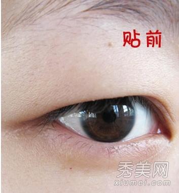 上能撑出双眼皮; 告别单眼皮泡泡眼