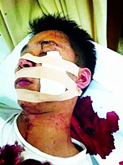 网络发布的受伤者照片