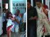 深圳一医院多位医护人员被砍伤