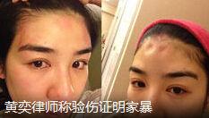 黄奕律师称家暴为真 不道歉就起诉