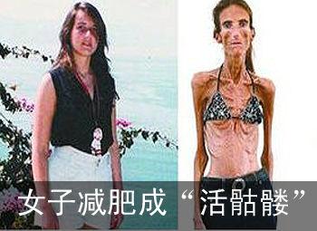 """女子减肥成""""活骷髅"""" 体重仅27公斤"""