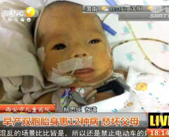 西安市儿童医院:早产双胞胎身患12种病 愁坏父母