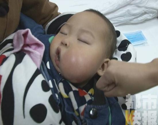 摔了一跤才发现 1岁男婴患肿瘤