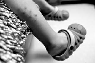 咸阳:三岁男童小腿出现针眼 疑幼儿园老师所为
